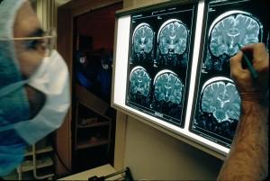 Parkinson : implantation d'électrodes