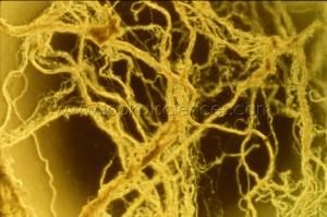 Filaments d'ADN