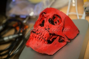 Impression 3D en chirurgie reconstructrice