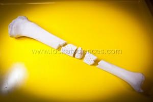 OsseoMatrix realise tous types d'implants osseux en bioceramiques. Ils sont faits sur mesure a partir d'un scanner du patient et obtenus par impression 3D couche par couche.  Ici, un implant de tibia en trois parties pour faciliter son insertion au moment de la chirurgie.